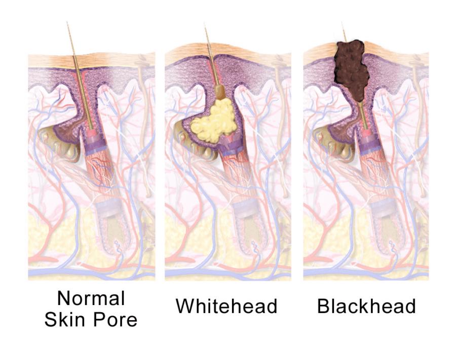 normale poriën, whitehead, blackhead, puistjes, acne, witte kop, zwarte mee-eter