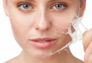 Vervellen van de de huid na chemische peeling
