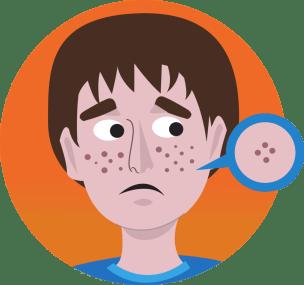 Acne kan een gevolg worden van slechte voeding. Slechte voeding kan darmproblemen veroorzaken, waardoor je indirect ook huidproblemen kan krijgen.
