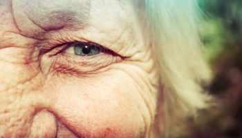 Retinol, huidveroudering