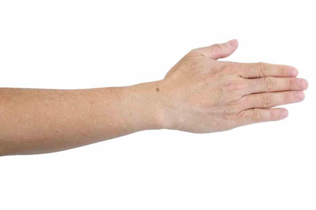 hypomelanosis gutatta idopathica, pigmentstoornissen van de huid, hypopigmentatie.