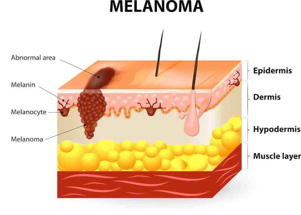 anatomie melanoom, anatomie huid, huidlagen, hypodermis, dermis, epidermis, melanocyten, melaninecellen, subcutaan
