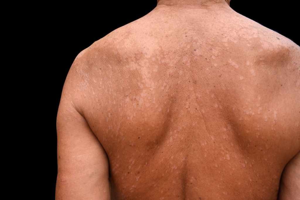 Pityriasis versicolor, pigmentstoornissen van de huid, hypopigmentatie, hypopigmentatie door schimmelinfectie, pigmentstoornissen van de huid door schimmelinfectie
