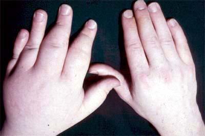 Arthritis, Psoriatic; Psoriasis, Arthritic; Psoriasis ...