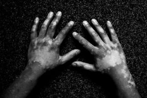 white pacthes on hands