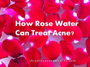 How to Use Rose Water for Acne and Acne Scars – 7 DIY Methods