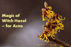 Witch Hazel A Quick Remedy For Acne