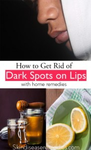 how to get rid of dark spots on lips fast