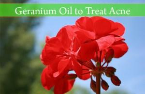 geranium oil for acne
