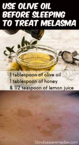 olive-oil-for-melasma
