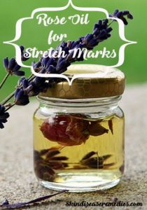 Rose Oil for Stretch Marks – A Natural Remedy