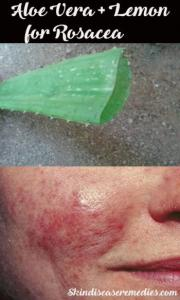 Aloe Vera for Rosacea -How to Use (7 DIY Recipes Included)