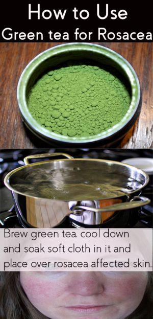 green tea for rosacea