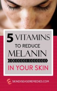 How to Reduce Melanin in Skin by Eating