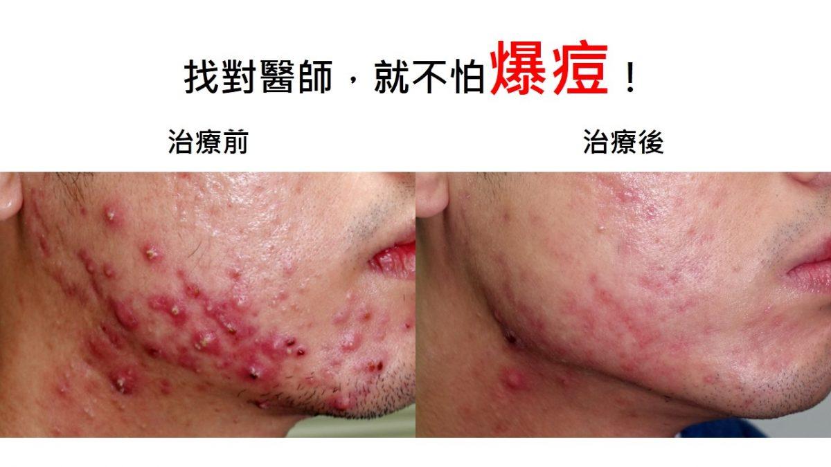 找對醫師,就不怕爆痘! | 蔡逸群醫師 | 臺中皮膚科推薦