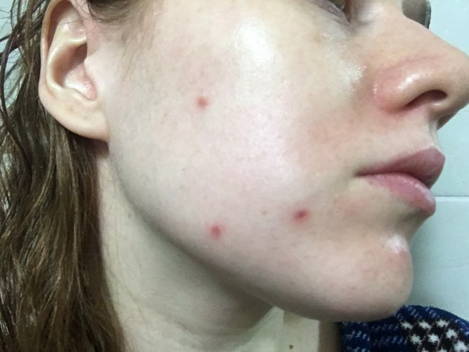 Facial Mole Laser Removal with Seoul Cosmetic Surgery & Banobagi