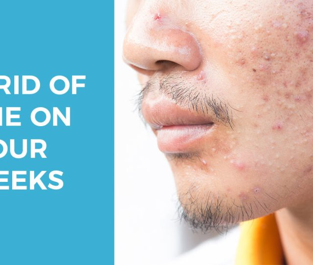 Acne On Cheeks How To Get Rid Of Stubborn Cheek Acne Treatments Steps