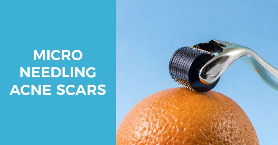 micro needling procedure to treat acne scars