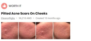 dermapen-for-acne-scars-before-after