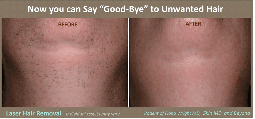 Laser Hair Removal Cosmetic Skin Care Specialist Plano TX