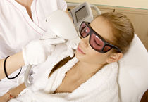 IPL Laser Photorejuvenation Treatments