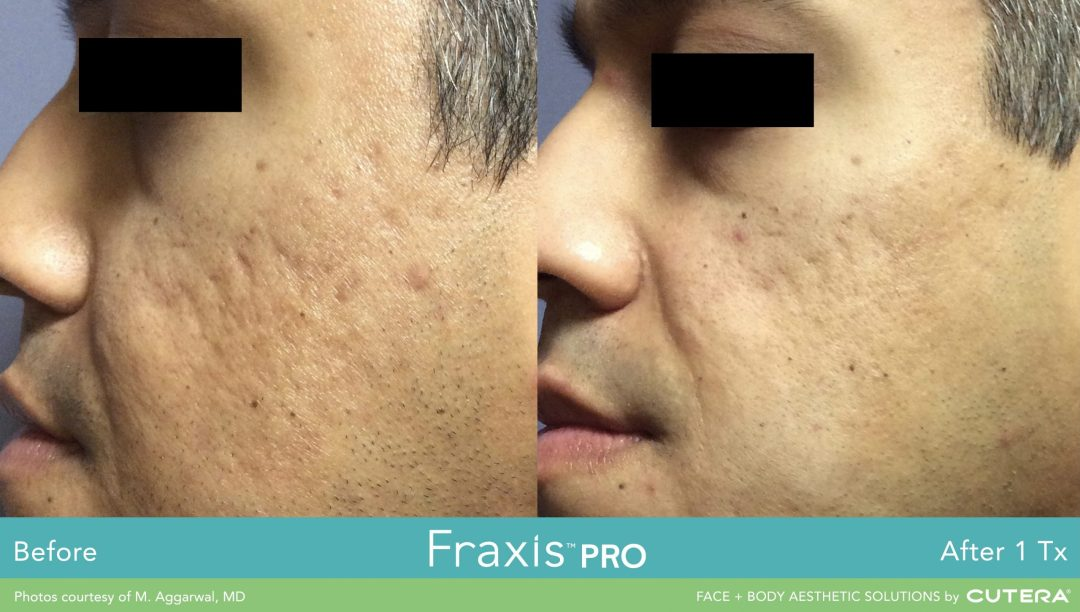 fraxis pro