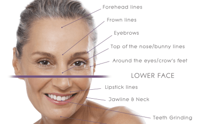 Ultimate Guide to Natural-Looking Botox | Injection Sites, Units, Downtime and more!