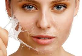 alpha hydroxyacid peels for the skin