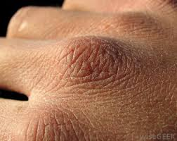 Xerosis dry skin on the Hand