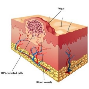 Viral Warts Affect 1 in 5 | Skin Surgery Laser Clinic