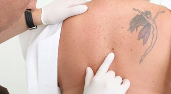 laser mole removal 2