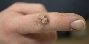 Wart on hand finger