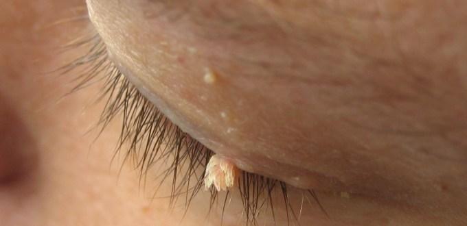 Wart on eyelid