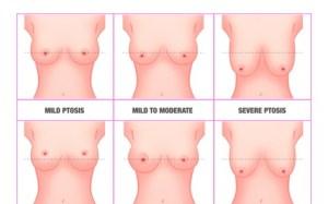 Breast Lift Augmentaion
