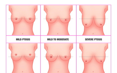 Breast Lift Augmentation 2