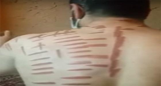 100 ألف ريال والسجن 6 أشهر عقوبة منتظرة لمدعي العلاج بالكي