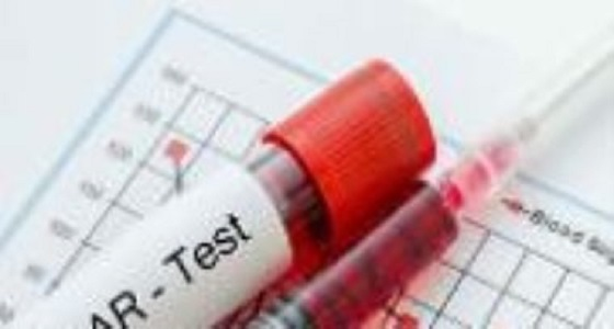 """اكتشاف علاج لمرض """" هينغتون """" الوراثي المدمر"""