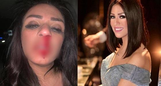 نجمة ستار أكاديمي تتعرض للضرب بوحشية على يد زوجها