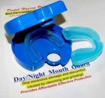dental hygiene preferred night guard review