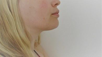 промени на кожата
