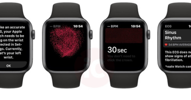 Apple watch series 4 Canada- ECG