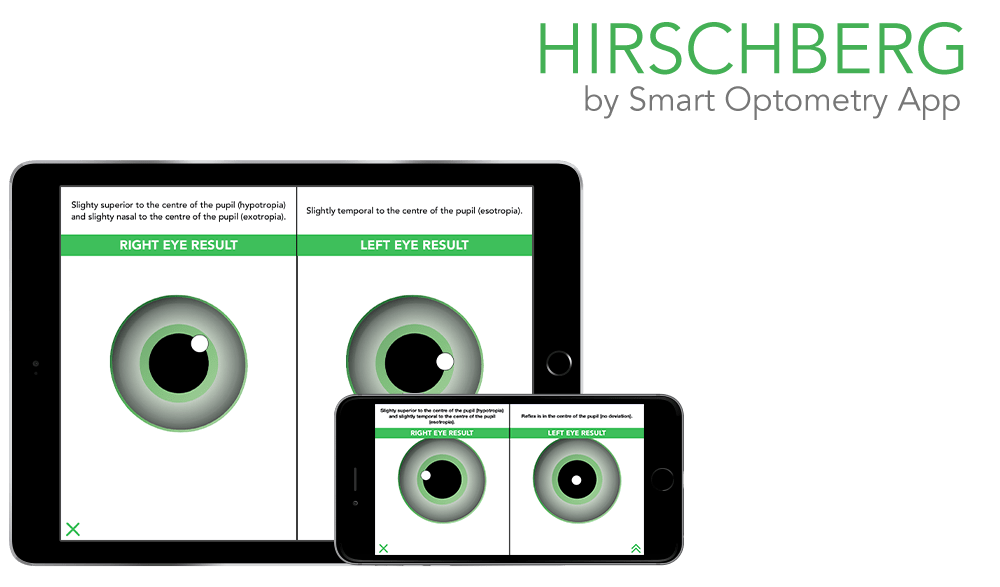 https://i1.wp.com/www.smart-optometry.com/wp-content/uploads/2016/08/hirschberg_preview_web.png?resize=1000%2C587&ssl=1
