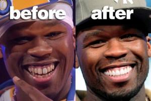 50 cent rapper teeth