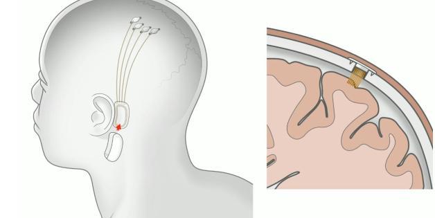 Ilustración de cómo podría ser la primera interfaz cerebro-máquina de Neuralink en humanos, con una serie de implantes conectados a un dispositivo implantado quirúrgicamente detrás de la oreja.