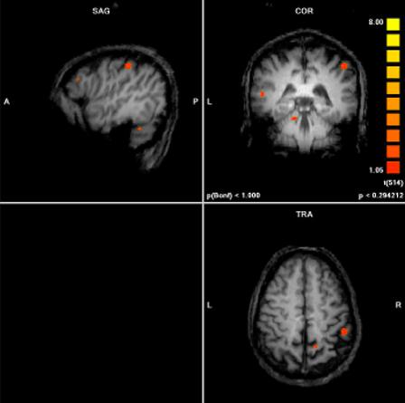 Imagen: ejemplo de un escáner fMRI. El área más activa es el surco intraparietal derecho (SIP).