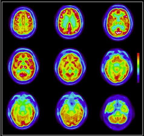 Imagen: Distribución normal de FDG en el cerebro de un paciente normal.