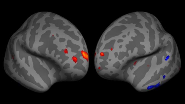 Esta imagen es una representación del cerebro humano reconstruida a partir de resonancias magnéticas y vista de frente. Las zonas del córtex prefrontal en las que un mayor volumen de materia gris se correlaciona con una mayor capacidad metacognitiva se muestran en rojo.