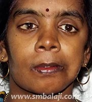Asymmetry of the face corrected with distraction osteogenesis without scars