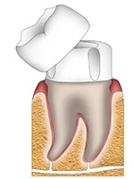 Schematic diagram of dental crown