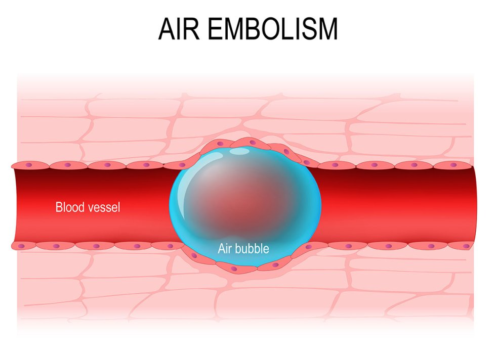 Effect of Air Embolisms on The Human Circulatory System